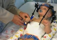 Unikāli: Ārsti izglābj mazuli, kuram avārijā norāva galvu VIDEO