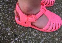 Viņu meita pirmo reizi uzvilka jaunās kurpītes. Jau pēc pus stundas mazā kājiņa pārvērtās šausmās! FOTO