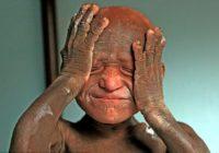 11 gadu vecumā viņš izskatījās pēc dzīvas statujas. Taču palīdzība nāca negaidīti! FOTO