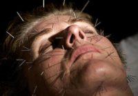 Pasaules slavenā adatu terapija, kas tas ir un ko tā dod?