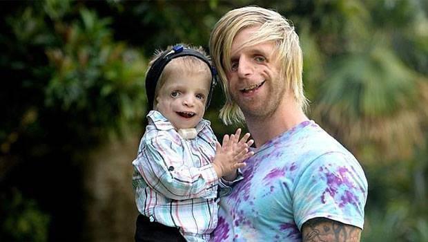 Puisis ar retu slimību uzzināja par divgadīgu puisīti ar tādu pašu defektu un uzreiz zināja, ko darīt! FOTO